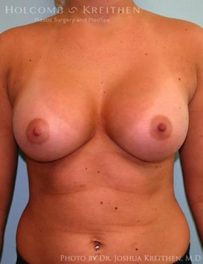 Breast Augmentation Gallery - Patient 6236568 - Image 2