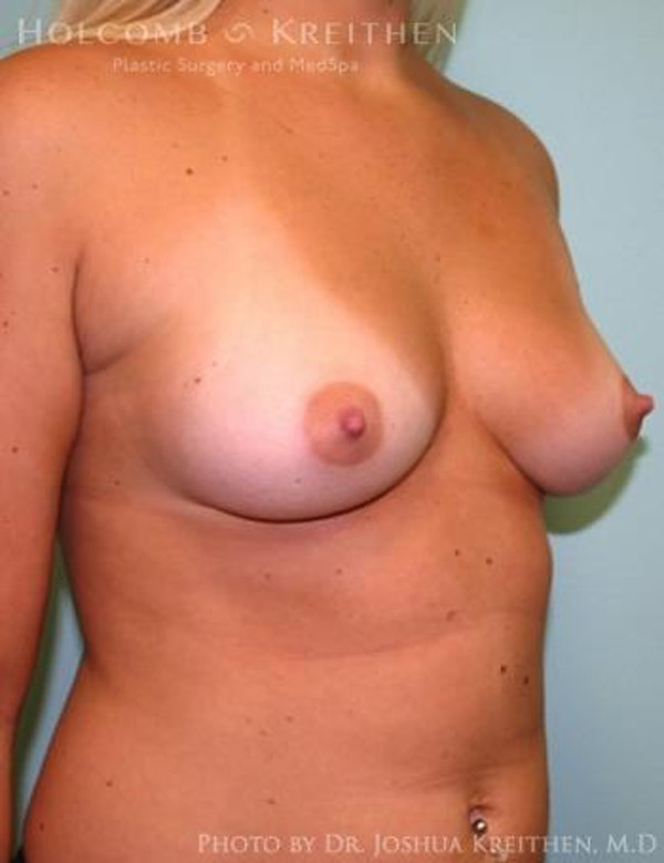 Breast Augmentation Gallery - Patient 6236568 - Image 3