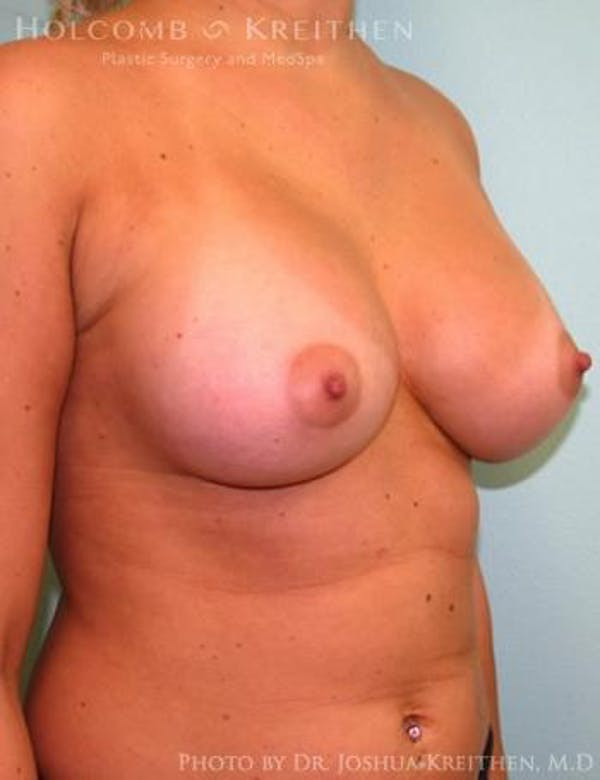 Breast Augmentation Gallery - Patient 6236568 - Image 4