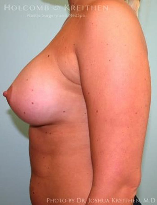 Breast Augmentation Gallery - Patient 6236568 - Image 6