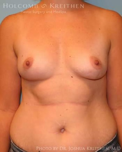 Breast Augmentation Gallery - Patient 6236569 - Image 1