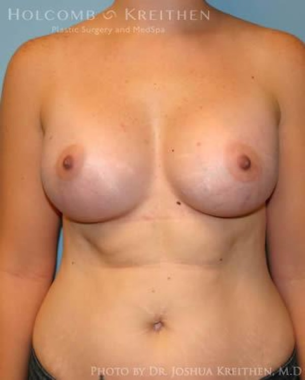 Breast Augmentation Gallery - Patient 6236569 - Image 2