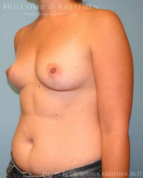 Breast Augmentation Gallery - Patient 6236569 - Image 3