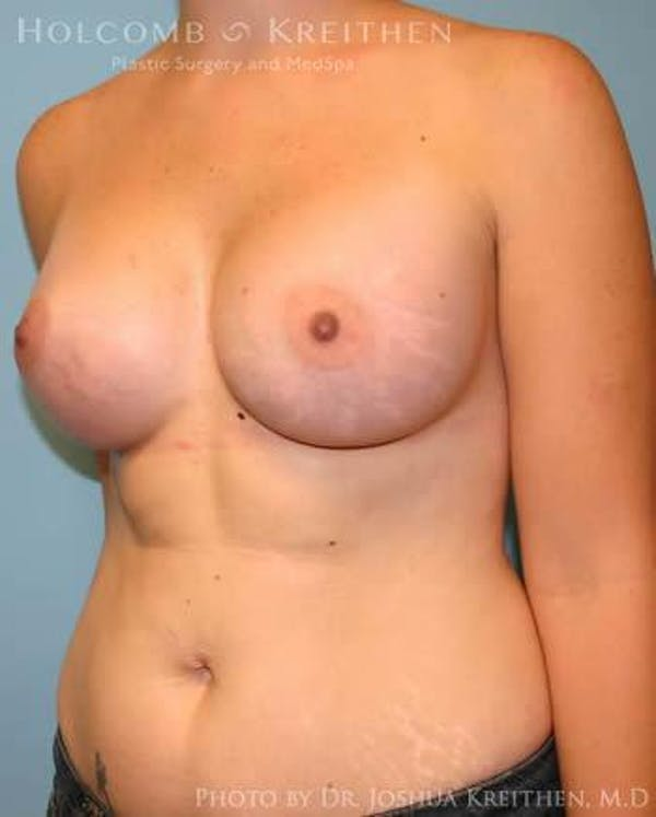 Breast Augmentation Gallery - Patient 6236569 - Image 4
