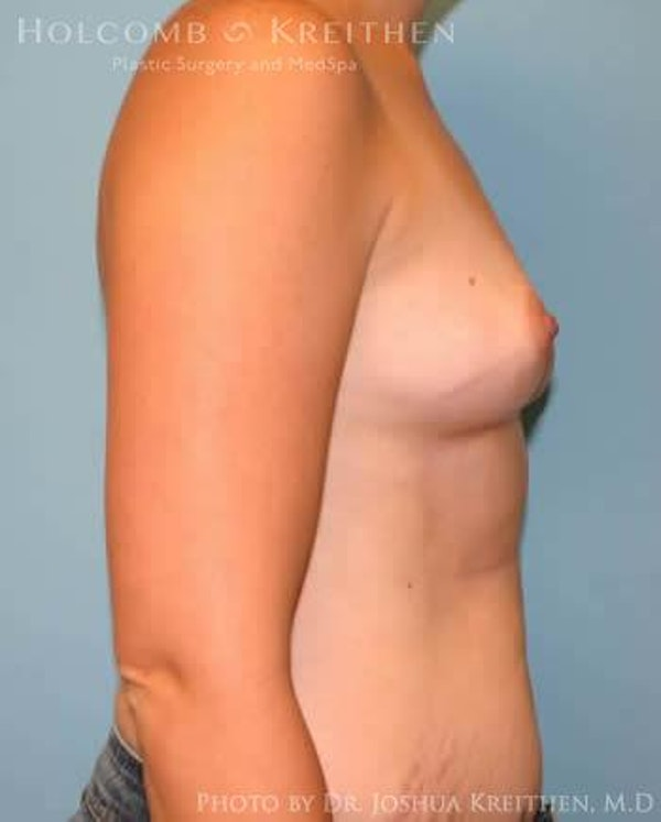 Breast Augmentation Gallery - Patient 6236569 - Image 5
