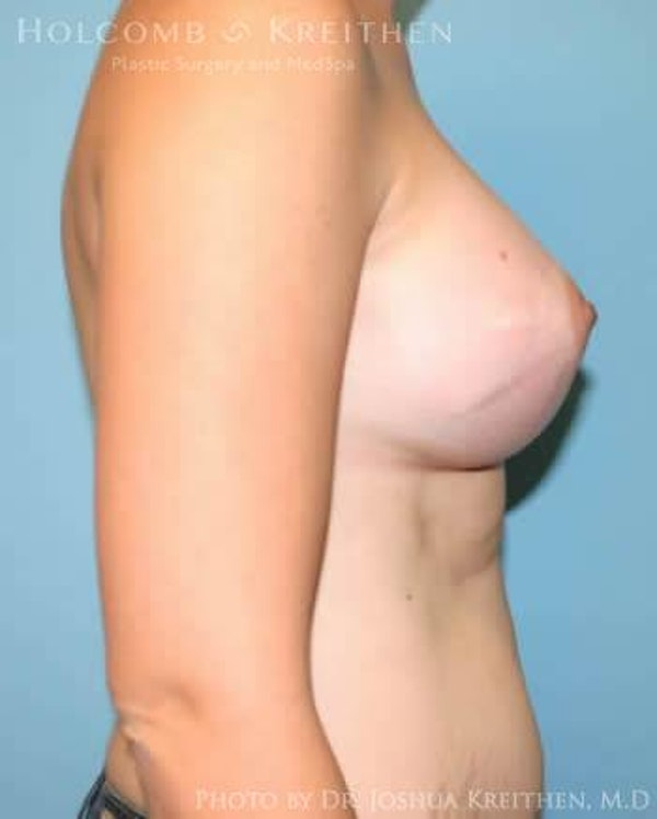 Breast Augmentation Gallery - Patient 6236569 - Image 6