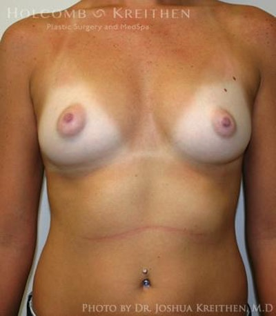 Breast Augmentation Gallery - Patient 6236580 - Image 1