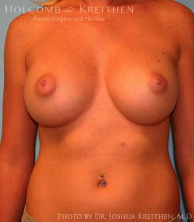 Breast Augmentation Gallery - Patient 6236580 - Image 2