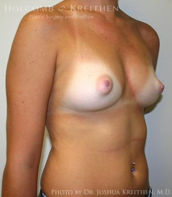 Breast Augmentation Gallery - Patient 6236580 - Image 3