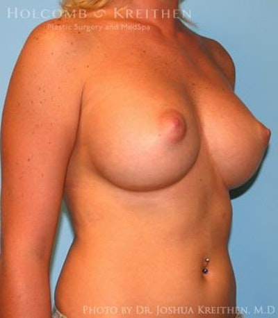 Breast Augmentation Gallery - Patient 6236580 - Image 4