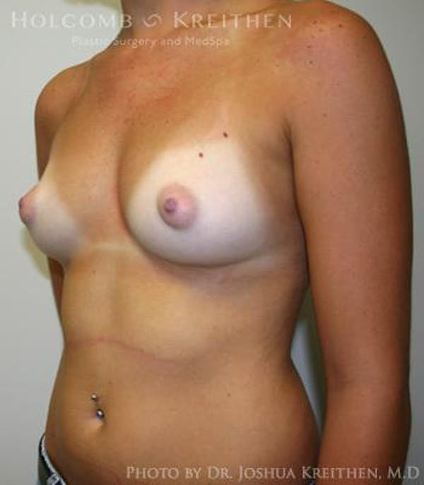 Breast Augmentation Gallery - Patient 6236580 - Image 5