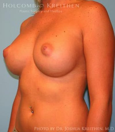 Breast Augmentation Gallery - Patient 6236580 - Image 6