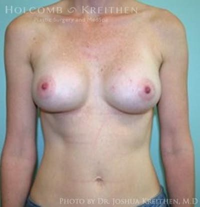 Breast Augmentation Gallery - Patient 6236582 - Image 1