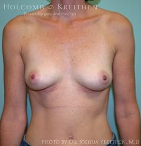 Breast Augmentation Gallery - Patient 6236582 - Image 2