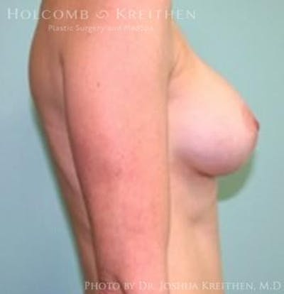 Breast Augmentation Gallery - Patient 6236582 - Image 6