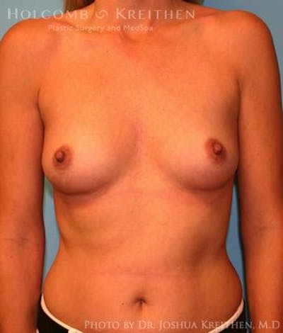 Breast Augmentation Gallery - Patient 6236583 - Image 14