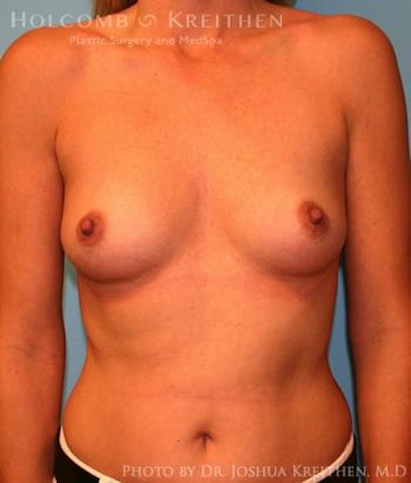 Breast Augmentation Gallery - Patient 6236583 - Image 1
