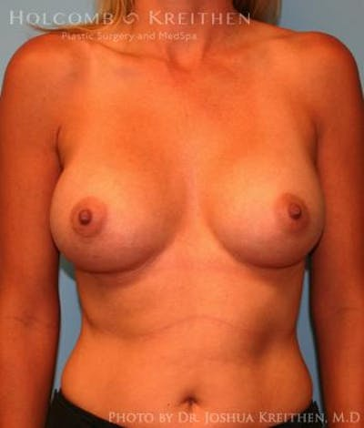 Breast Augmentation Gallery - Patient 6236583 - Image 2
