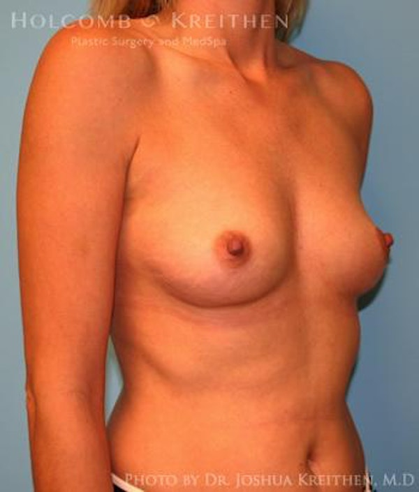 Breast Augmentation Gallery - Patient 6236583 - Image 3