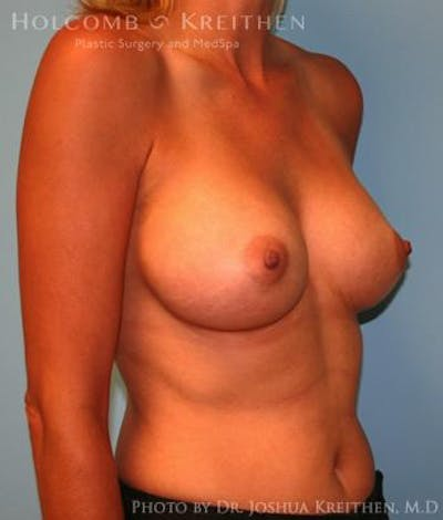 Breast Augmentation Gallery - Patient 6236583 - Image 4