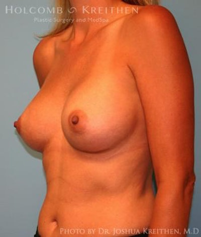 Breast Augmentation Gallery - Patient 6236583 - Image 6