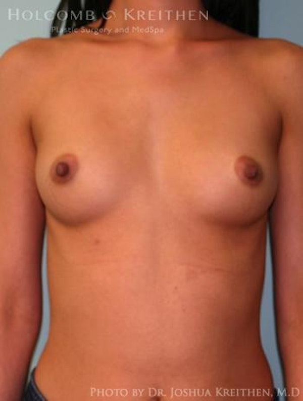 Breast Augmentation Gallery - Patient 6236585 - Image 1
