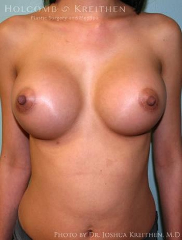 Breast Augmentation Gallery - Patient 6236585 - Image 2