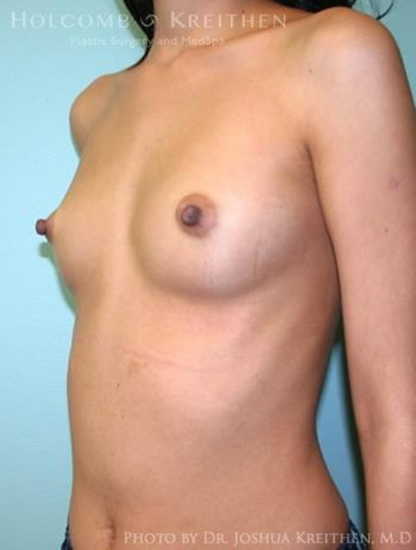 Breast Augmentation Gallery - Patient 6236585 - Image 3