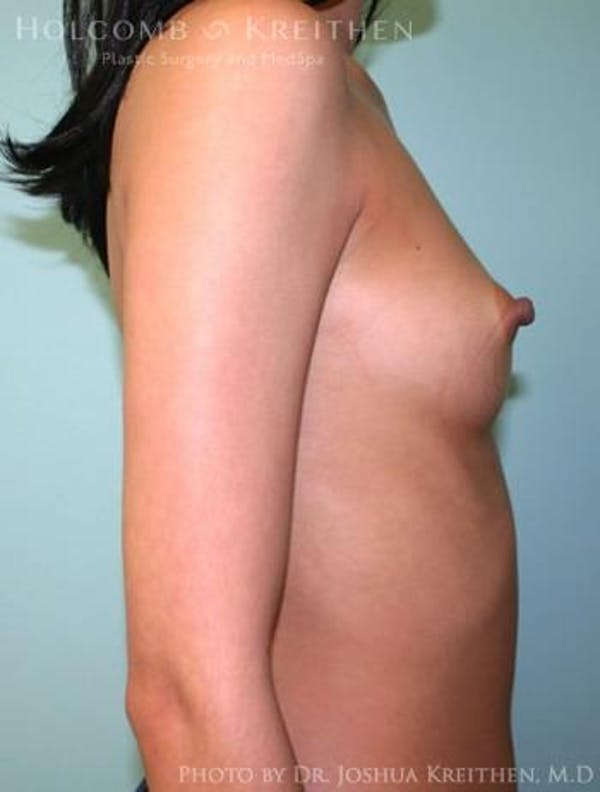Breast Augmentation Gallery - Patient 6236585 - Image 5