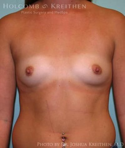 Breast Augmentation Gallery - Patient 6236588 - Image 1
