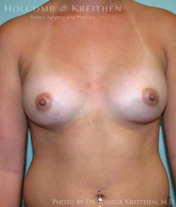 Breast Augmentation Gallery - Patient 6236588 - Image 2