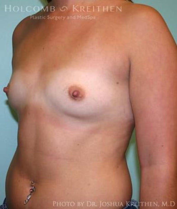 Breast Augmentation Gallery - Patient 6236588 - Image 3