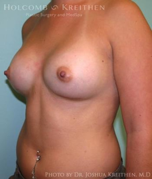 Breast Augmentation Gallery - Patient 6236588 - Image 4