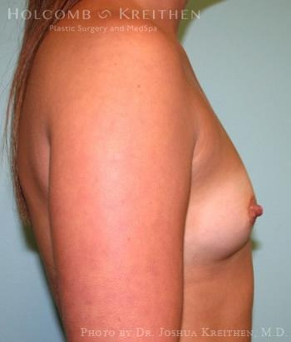 Breast Augmentation Gallery - Patient 6236588 - Image 5