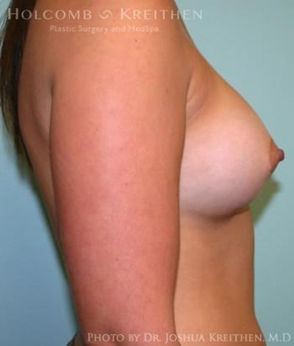 Breast Augmentation Gallery - Patient 6236588 - Image 6