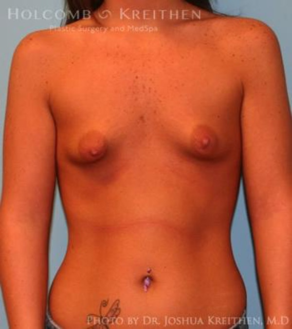 Breast Augmentation Gallery - Patient 6236589 - Image 1
