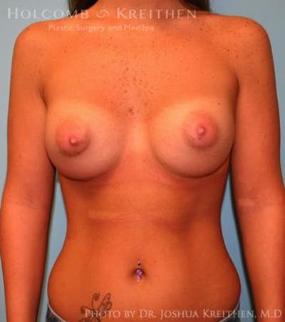 Breast Augmentation Gallery - Patient 6236589 - Image 2