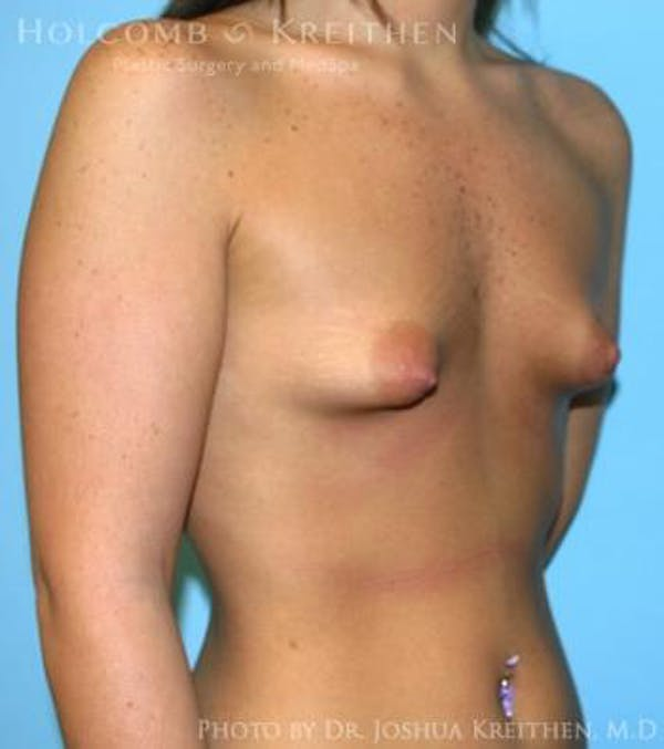 Breast Augmentation Gallery - Patient 6236589 - Image 3