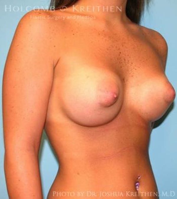Breast Augmentation Gallery - Patient 6236589 - Image 4