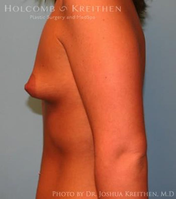 Breast Augmentation Gallery - Patient 6236589 - Image 5