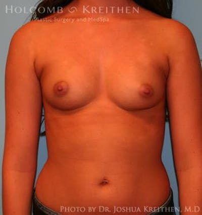 Breast Augmentation Gallery - Patient 6236590 - Image 1