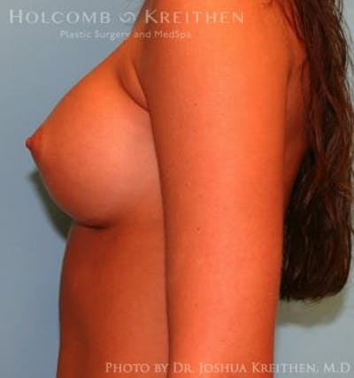 Breast Augmentation Gallery - Patient 6236590 - Image 6
