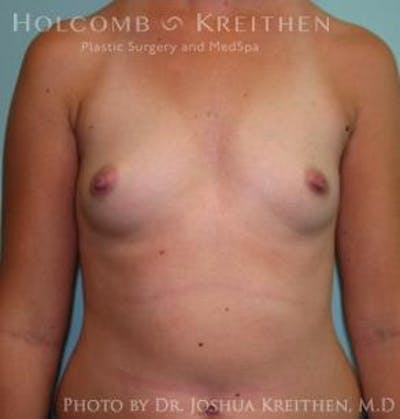 Breast Augmentation Gallery - Patient 6236592 - Image 1
