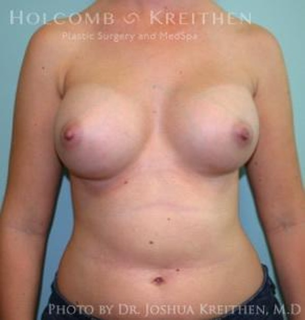 Breast Augmentation Gallery - Patient 6236592 - Image 2