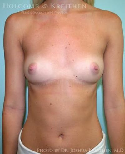 Breast Augmentation Gallery - Patient 6236593 - Image 1