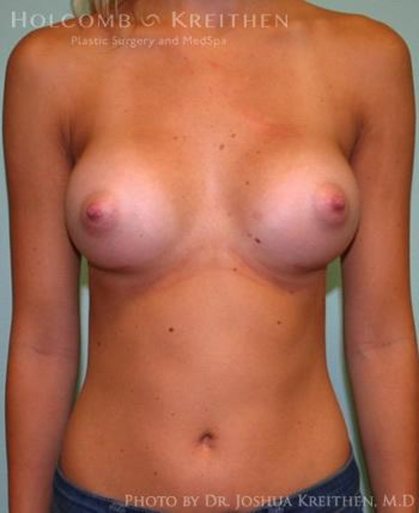 Breast Augmentation Gallery - Patient 6236593 - Image 2