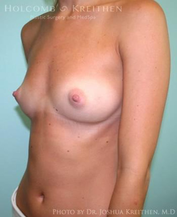 Breast Augmentation Gallery - Patient 6236593 - Image 3