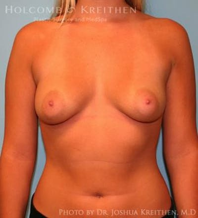 Breast Augmentation Gallery - Patient 6236594 - Image 21
