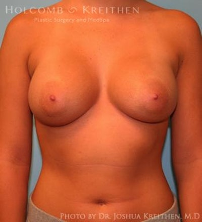 Breast Augmentation Gallery - Patient 6236594 - Image 2