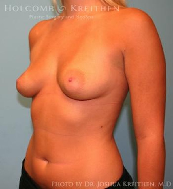 Breast Augmentation Gallery - Patient 6236594 - Image 3